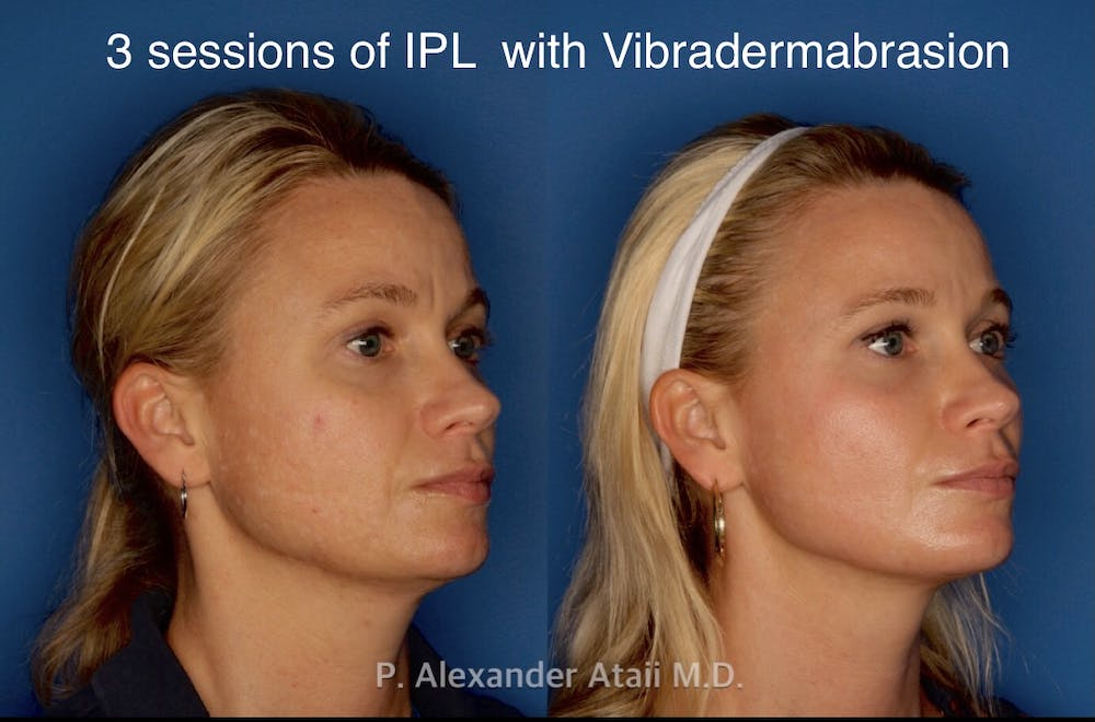 IPL Photorejuvenation Gallery - Patient 24560548 - Image 2