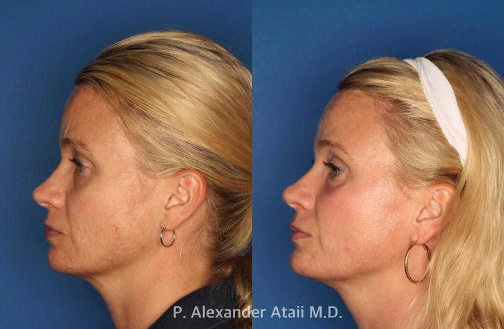 IPL Photorejuvenation Gallery - Patient 24560548 - Image 3