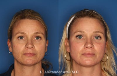 IPL Photorejuvenation Gallery - Patient 24560548 - Image 4