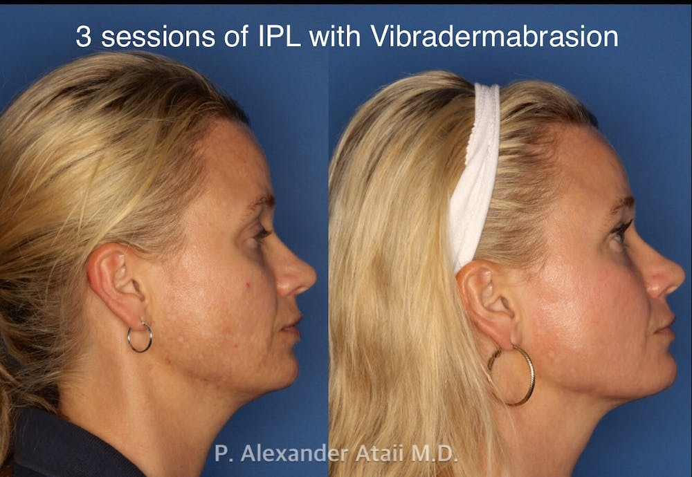 IPL Photorejuvenation Gallery - Patient 24560548 - Image 5