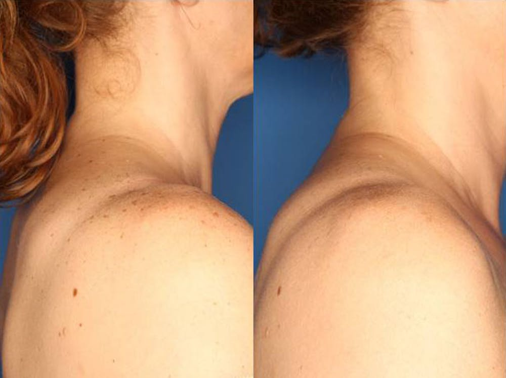 IPL Photorejuvenation Gallery - Patient 24560557 - Image 1