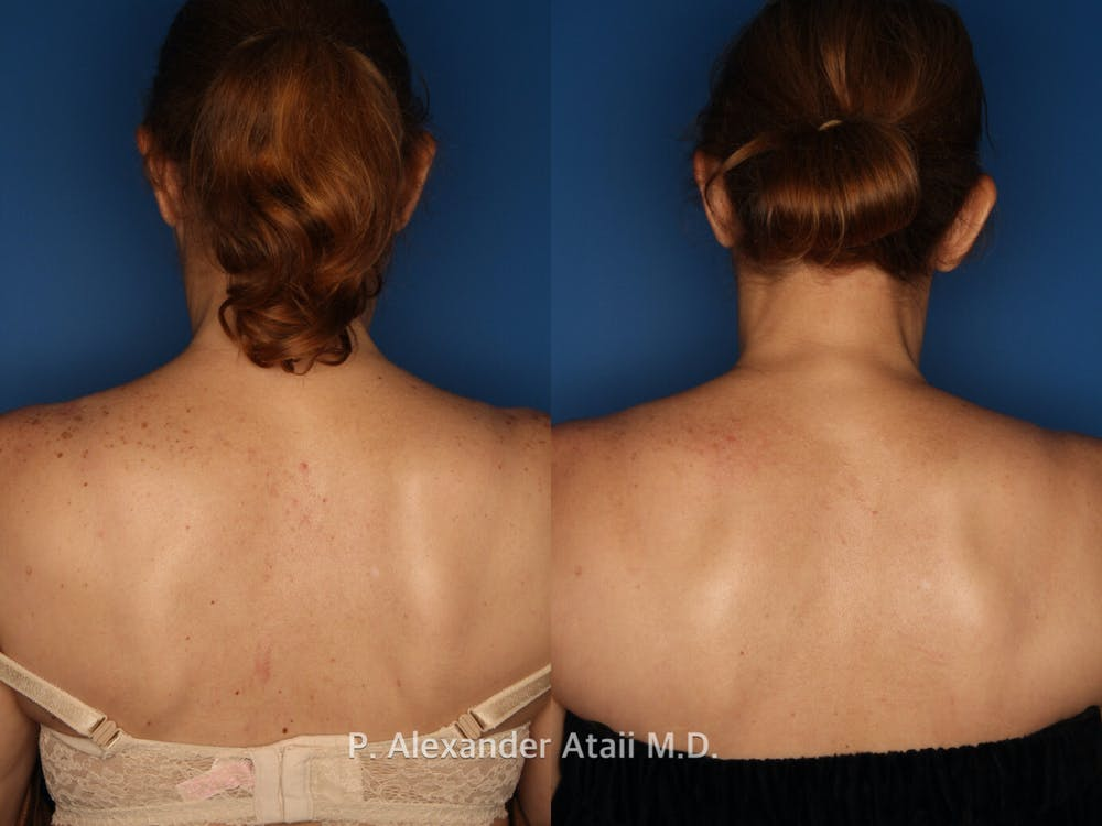 IPL Photorejuvenation Gallery - Patient 24560557 - Image 2