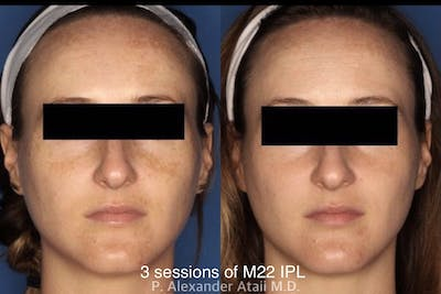 IPL Photorejuvenation Gallery - Patient 24560572 - Image 1