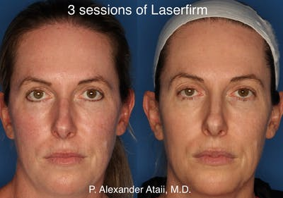 LaserFirm Gallery - Patient 24560576 - Image 1