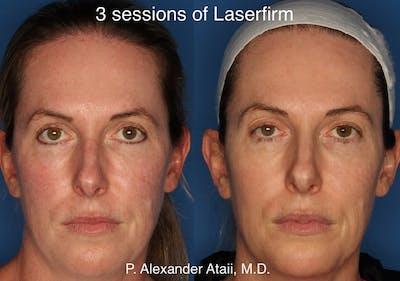LaserFirm Gallery - Patient 24560576 - Image 1