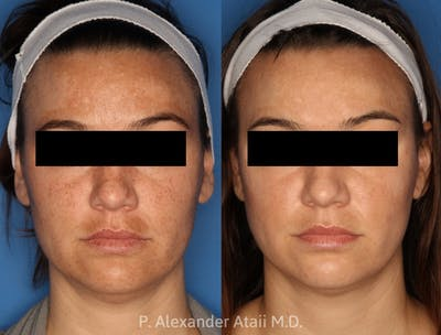 IPL Photorejuvenation Gallery - Patient 24560577 - Image 1