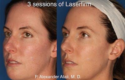 LaserFirm Gallery - Patient 24560576 - Image 2