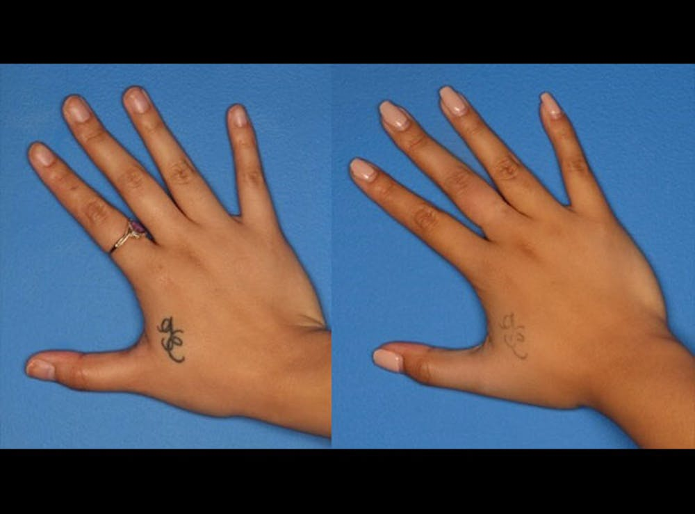 Laser Tattoo Removal Gallery - Patient 24560575 - Image 1