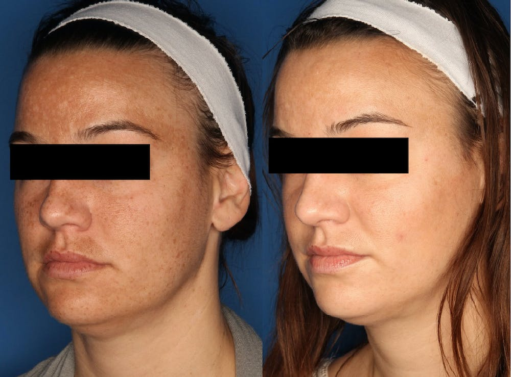 IPL Photorejuvenation Gallery - Patient 24560577 - Image 2