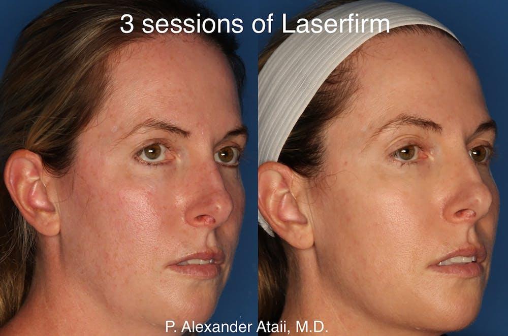 LaserFirm Gallery - Patient 24560576 - Image 3