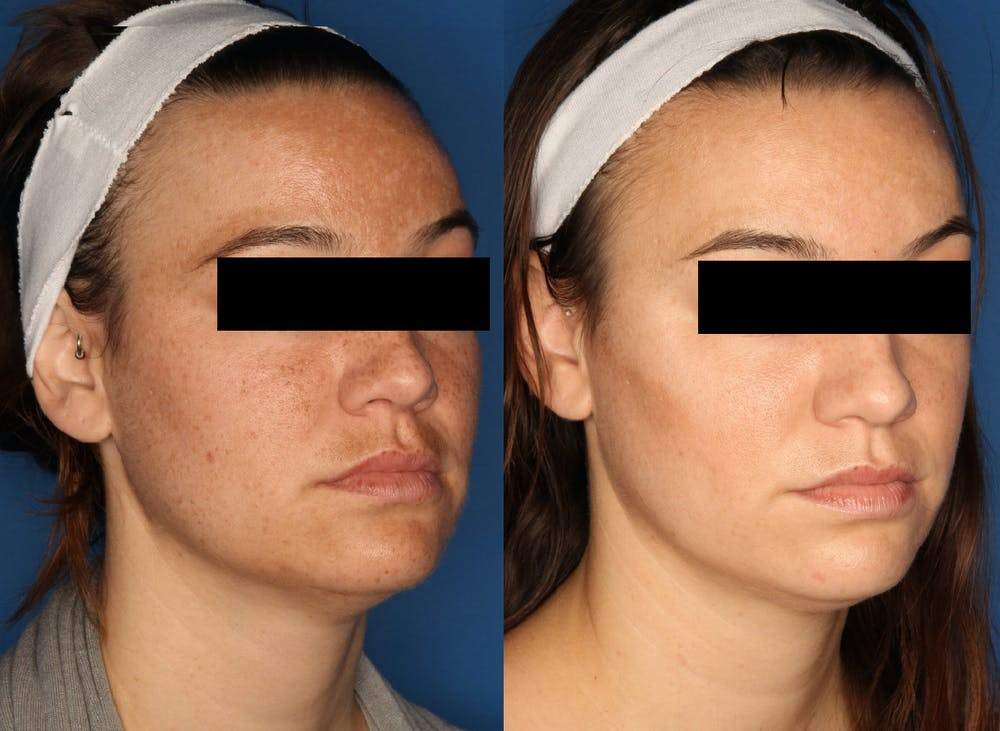 IPL Photorejuvenation Gallery - Patient 24560577 - Image 3