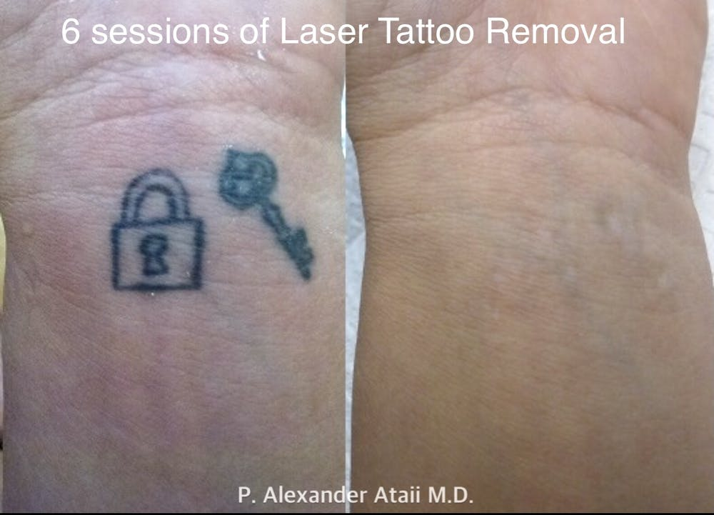 Laser Tattoo Removal Gallery - Patient 24560578 - Image 1