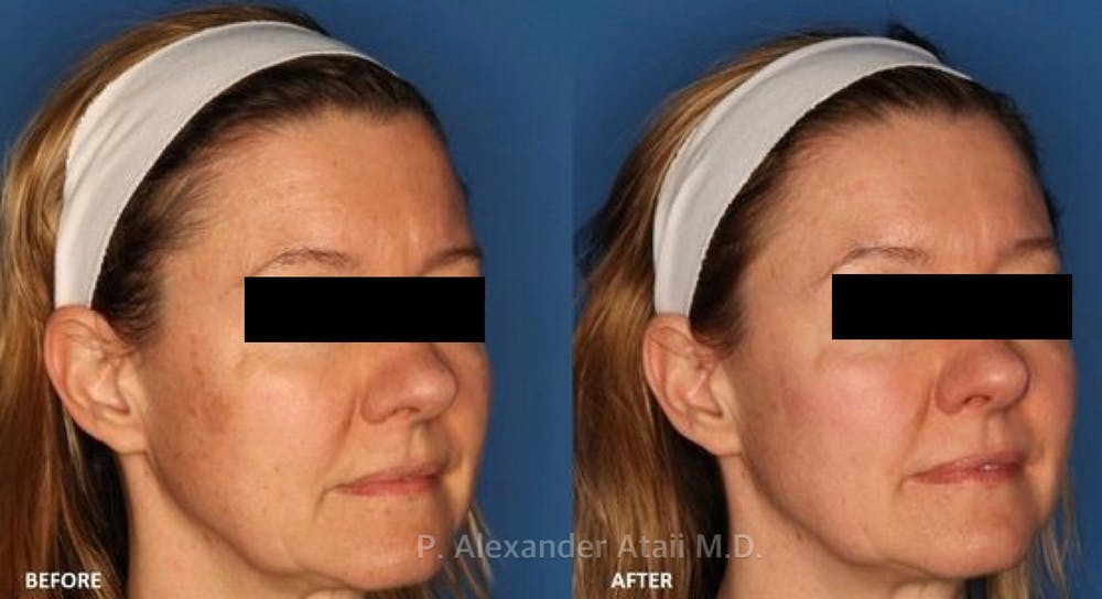 IPL Photorejuvenation Gallery - Patient 24560580 - Image 1
