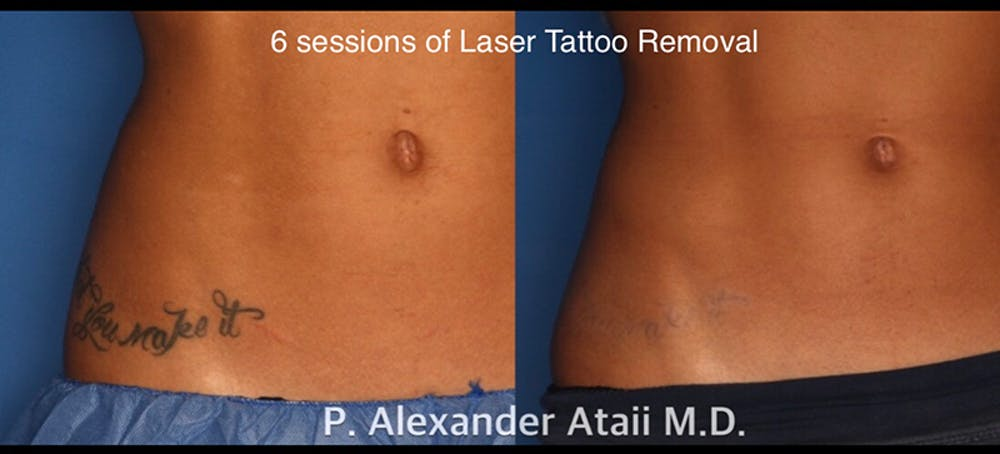 Laser Tattoo Removal Gallery - Patient 24560582 - Image 1