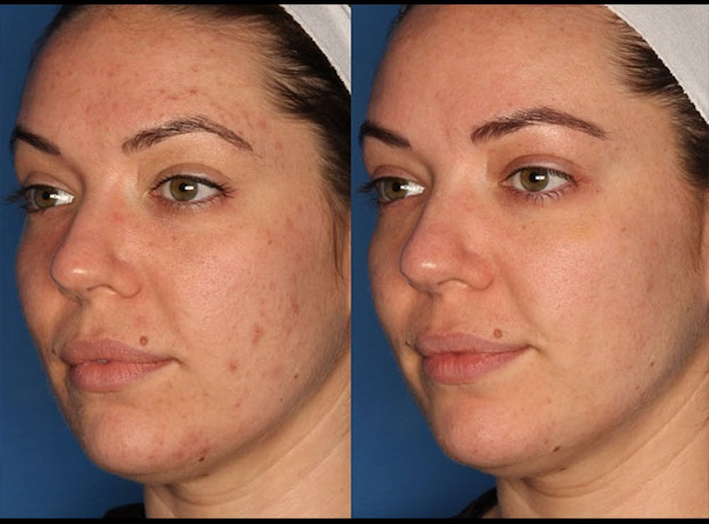 Photodynamic Therapy with Blu-U Gallery - Patient 24560585 - Image 1