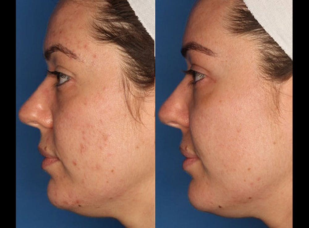 Photodynamic Therapy with Blu-U Gallery - Patient 24560585 - Image 2