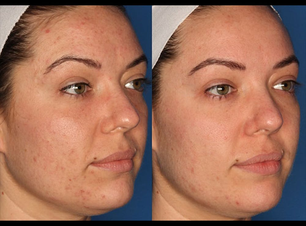 Photodynamic Therapy with Blu-U Gallery - Patient 24560585 - Image 3