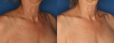 IPL Photorejuvenation Gallery - Patient 24560612 - Image 1