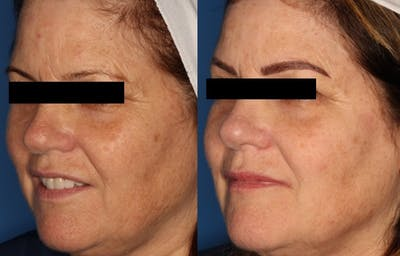 IPL Photorejuvenation Gallery - Patient 24560624 - Image 1