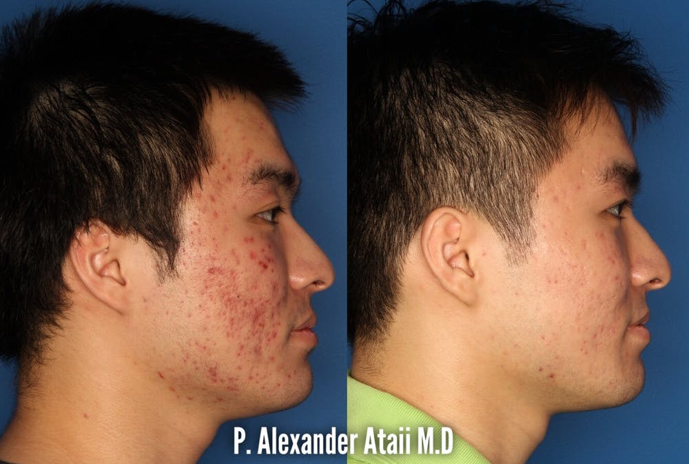 Photodynamic Therapy with Blu-U Gallery - Patient 24560629 - Image 3