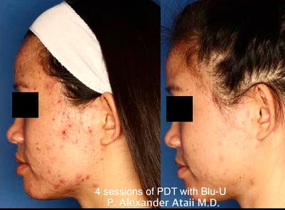 Photodynamic Therapy with Blu-U Gallery - Patient 24560632 - Image 1