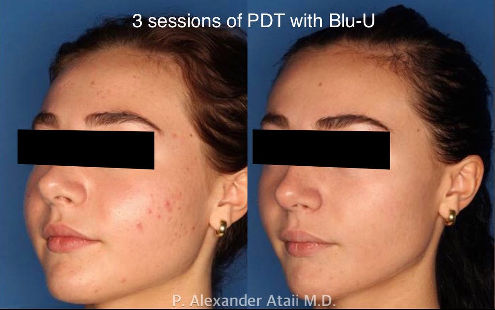 Photodynamic Therapy with Blu-U Gallery - Patient 24560644 - Image 1
