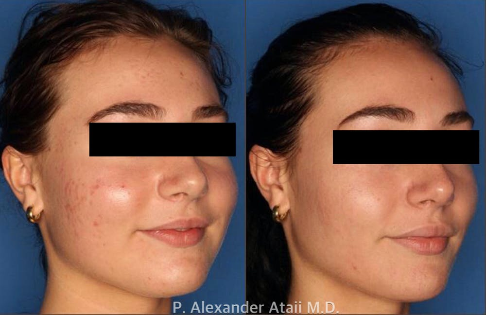 Photodynamic Therapy with Blu-U Gallery - Patient 24560644 - Image 2