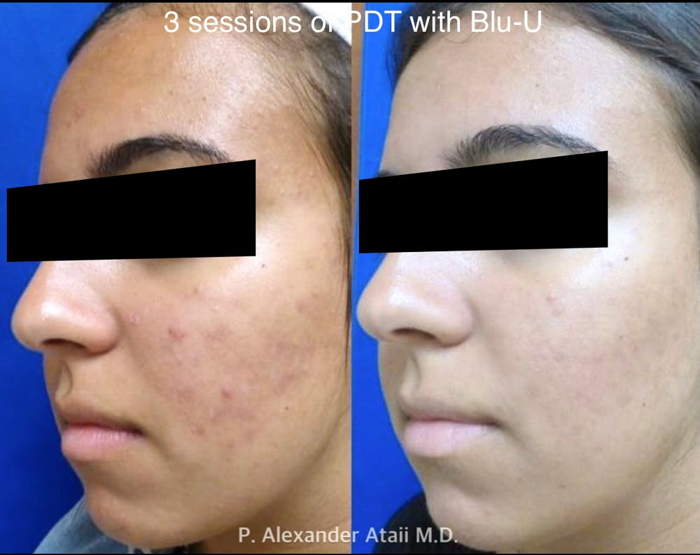 Photodynamic Therapy with Blu-U Gallery - Patient 24560663 - Image 1