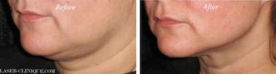 Ultherapy Gallery - Patient 24560658 - Image 1