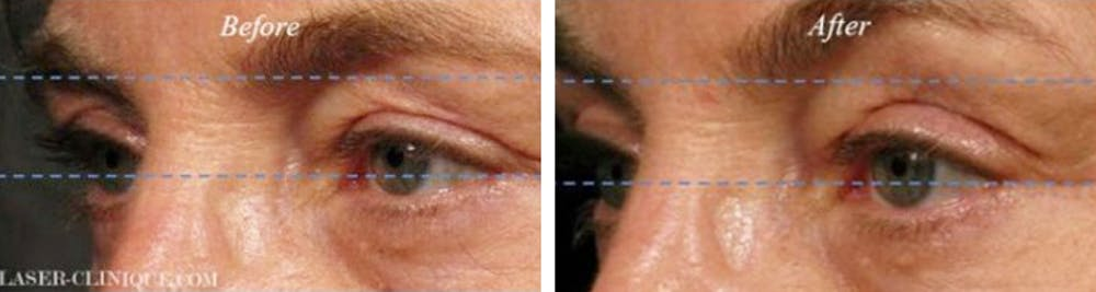 Ultherapy Gallery - Patient 24560664 - Image 1