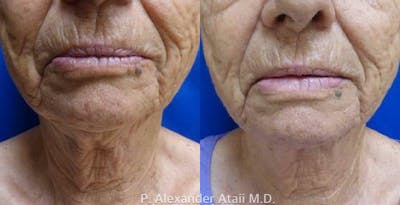 Ultherapy Gallery - Patient 24560671 - Image 1