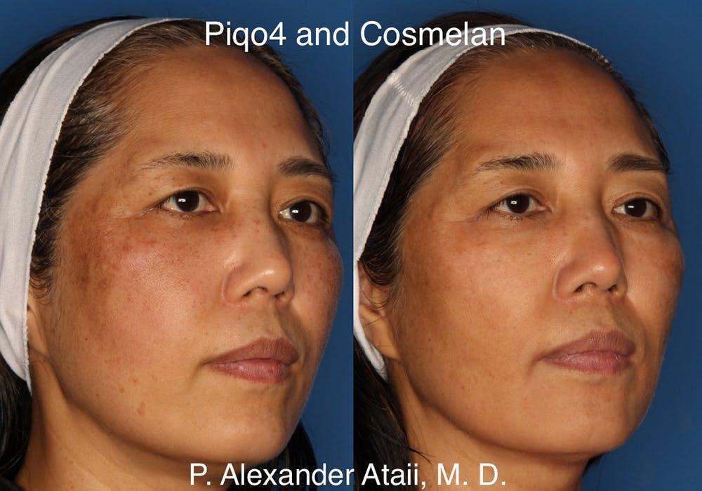 PiQo4 Laser Gallery - Patient 24560672 - Image 1