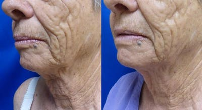Ultherapy Gallery - Patient 24560671 - Image 2