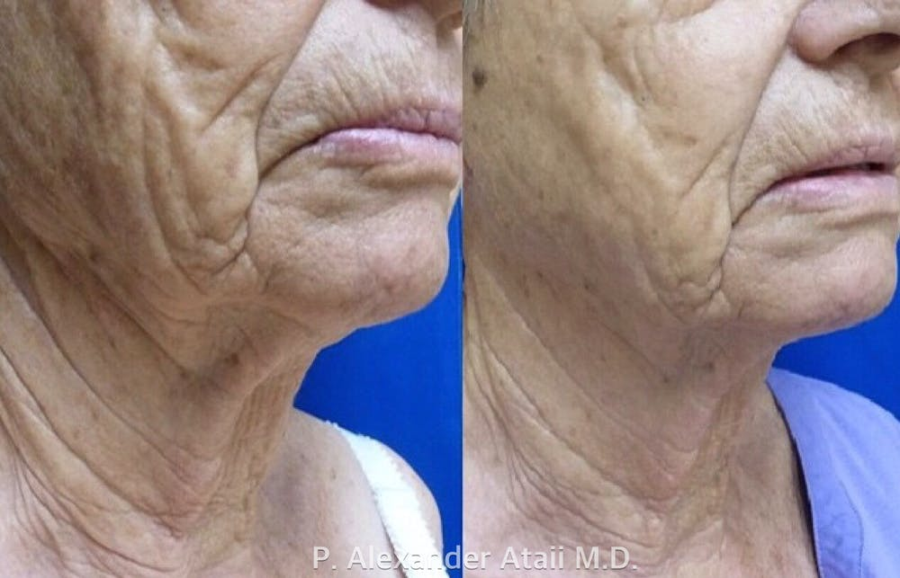 Ultherapy Gallery - Patient 24560671 - Image 3