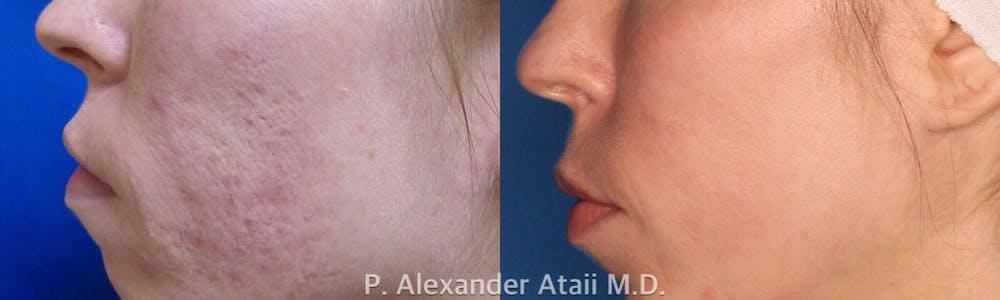 TotalFX Gallery - Patient 24560673 - Image 2