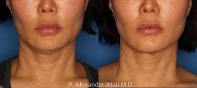 Ultherapy Gallery - Patient 24560678 - Image 1