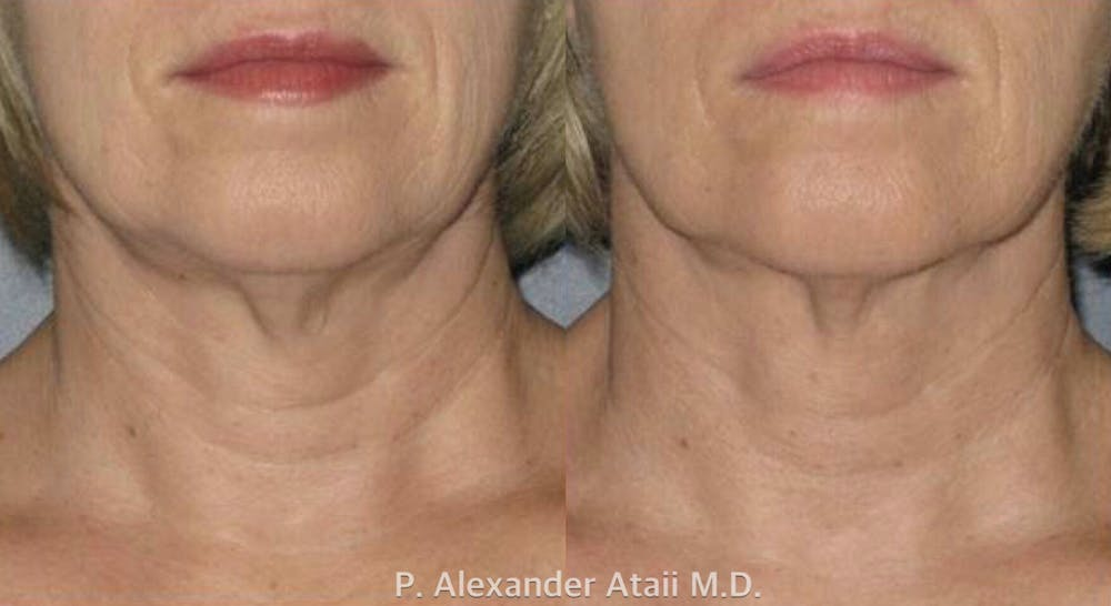 Ultherapy Gallery - Patient 24560682 - Image 1