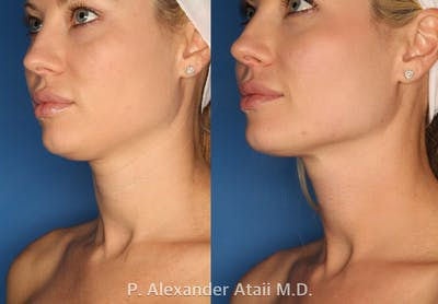 Ultherapy Gallery - Patient 24560689 - Image 1