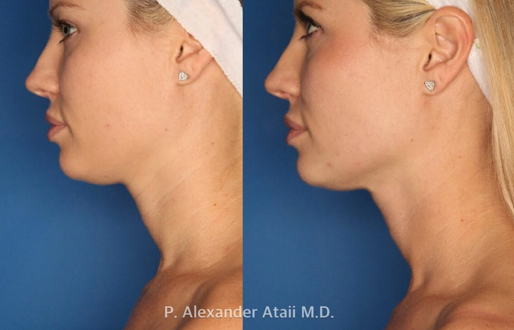 Ultherapy Gallery - Patient 24560689 - Image 2