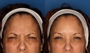 Before and After Botox in San Diego