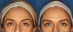 Before and After Botox in La Jolla