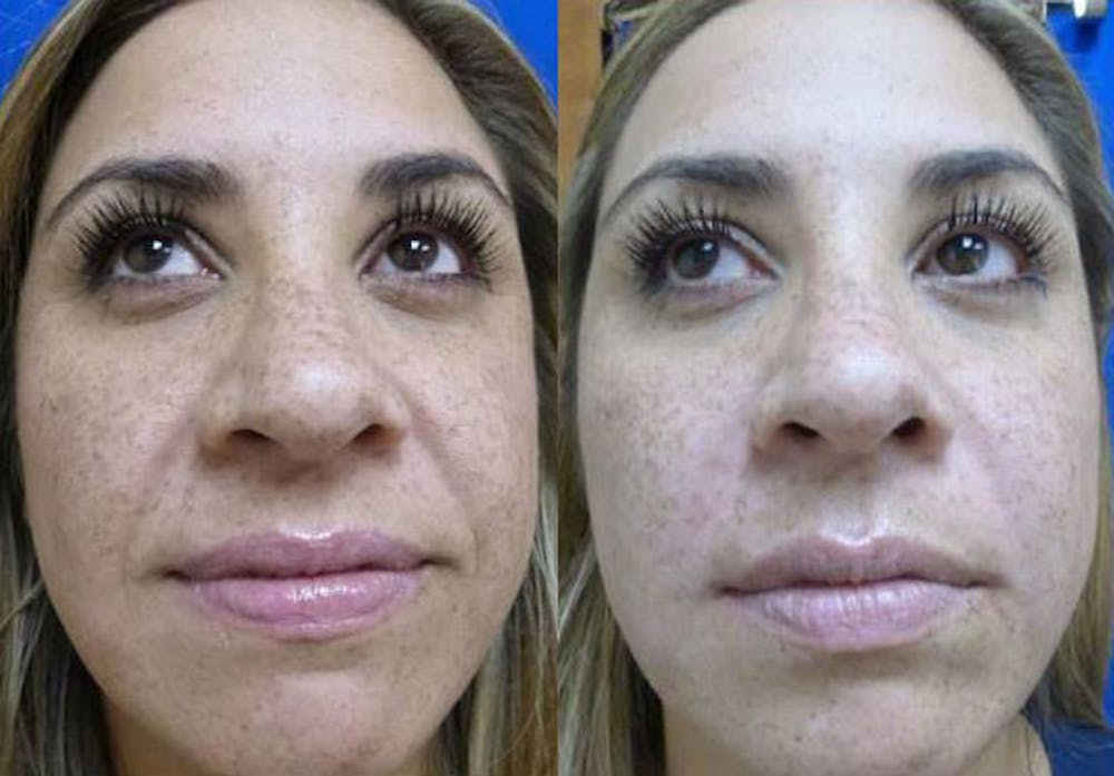 Juvederm Ultra XC Gallery - Patient 24560732 - Image 1