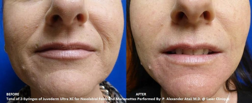 Juvederm Ultra XC Gallery - Patient 24560737 - Image 1