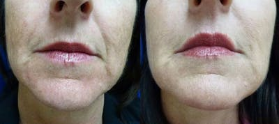 Juvederm Ultra XC Gallery - Patient 24560769 - Image 1
