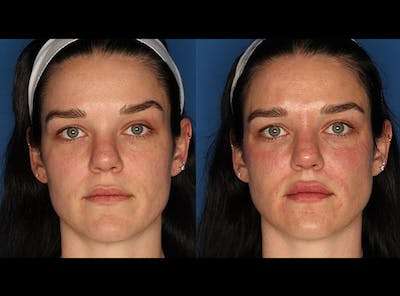 Juvederm Ultra XC Gallery - Patient 24560779 - Image 1