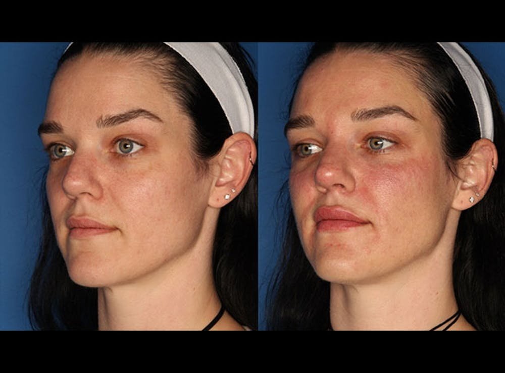 Juvederm Ultra XC Gallery - Patient 24560779 - Image 2