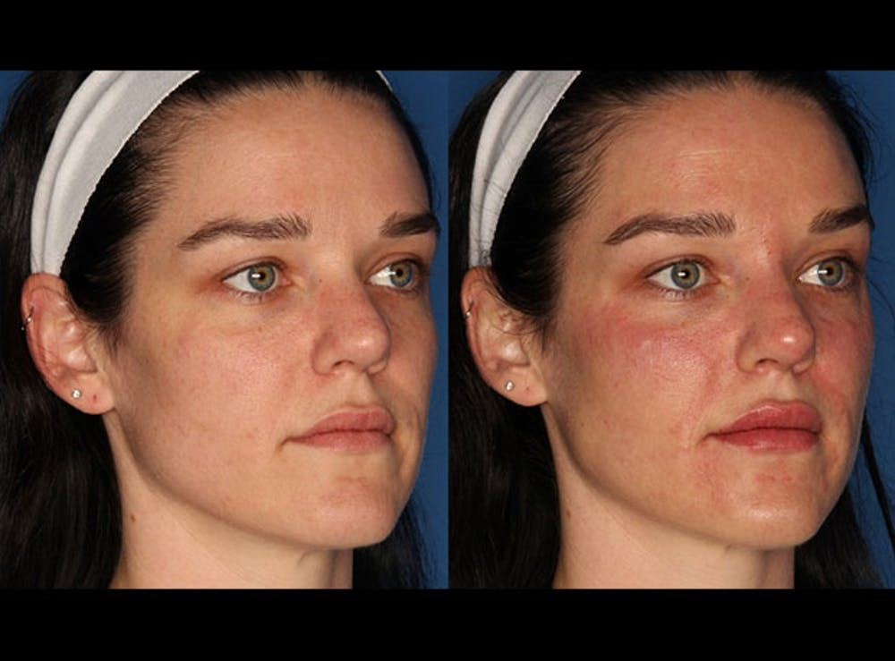 Juvederm Ultra XC Gallery - Patient 24560779 - Image 3
