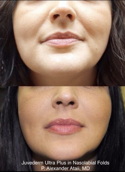 Juvederm Ultra XC Gallery - Patient 24560781 - Image 1