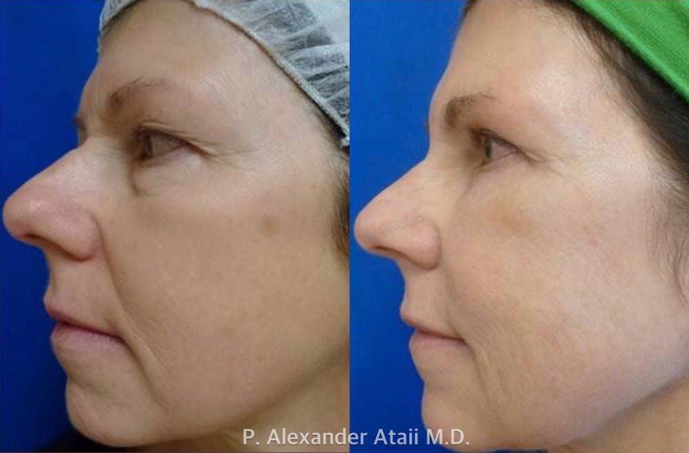 Liquid Facelift Gallery - Patient 24560803 - Image 1