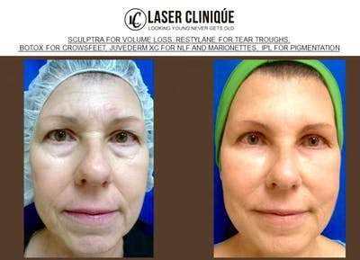 Liquid Facelift Gallery - Patient 24560803 - Image 2